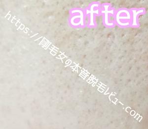 ケノン 美顔器 ボツボツ ニキビ跡の肌画像 アフター写真