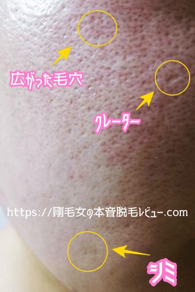 シミ ニキビ跡 毛穴 クレーターがある肌