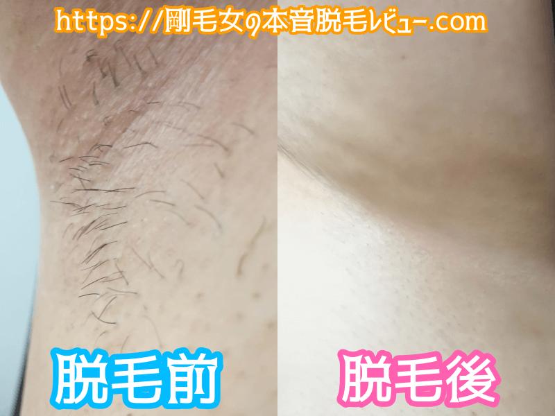 ケノンワキ脱毛 Before After