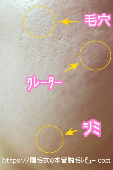 シミ 毛穴 ニキビ跡 クレーターが目立たなくなった肌