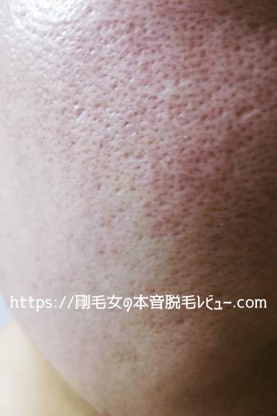 肌のニキビ跡 毛穴 クレーター