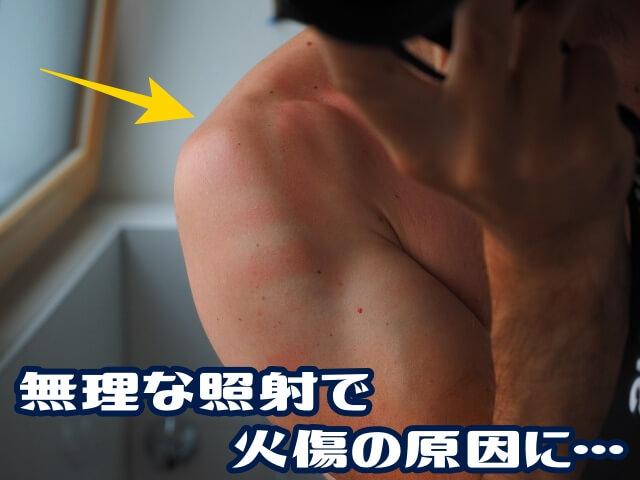 無理な照射で火傷した男性の腕