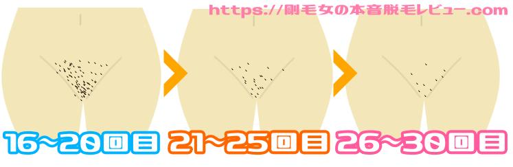 Vライン脱毛 経過レビュー2