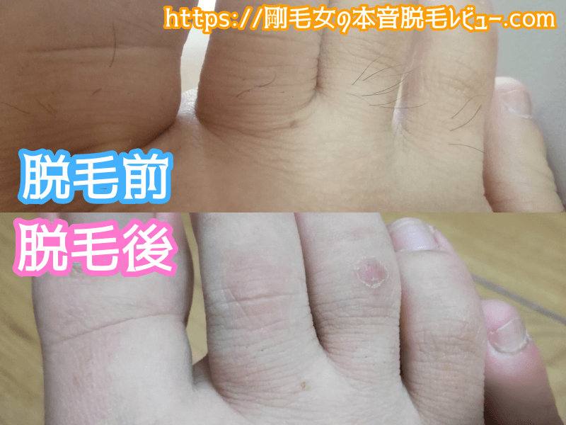 足の指脱毛 ビフォーアフター